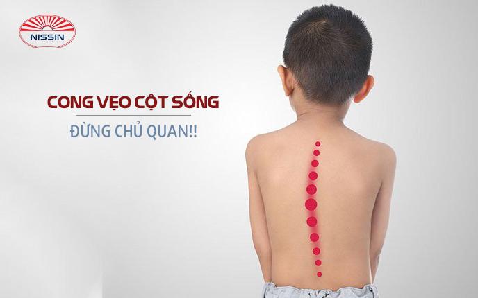 Bệnh gù lưng ở trẻ em