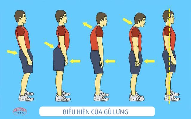 Biểu hiện nhận biết gù lưng